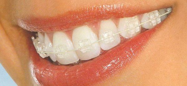 Aparatos de ortodoncia Murcia fijos