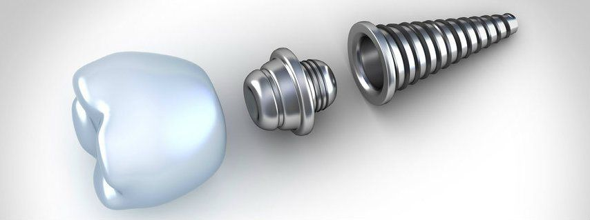 Tipos de implantes dentales Murcia