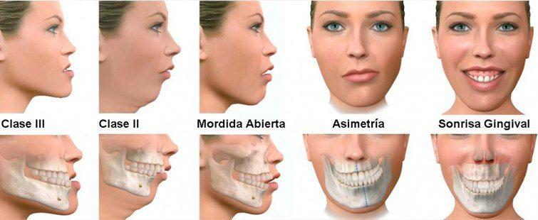 Tratamiento ortodoncia Murcia