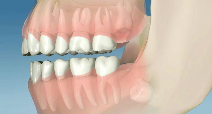 Cuando hay que extraer las muelas del juicio con cirugia bucal Murcia