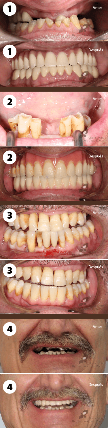 casos implantes dentales en Clinica Dental Murcia Jose Luis Cano