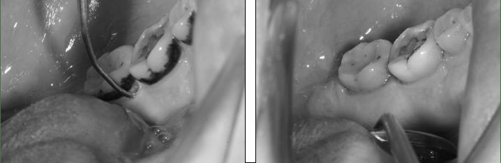 raspados periodontal