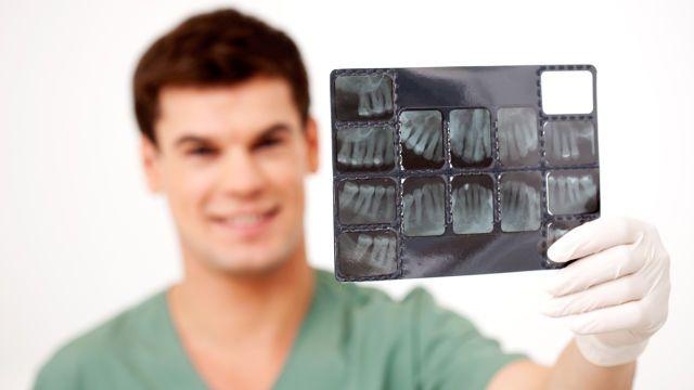 Sintomas dentales durante la menopausia y la osteoporosis