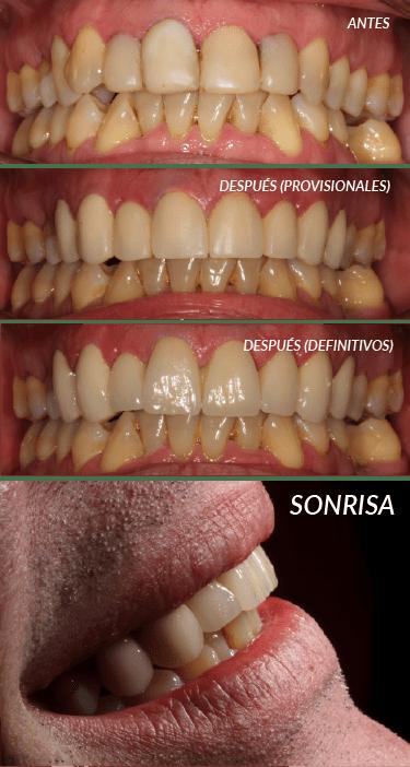 caso estetica dental jose luis cano-01
