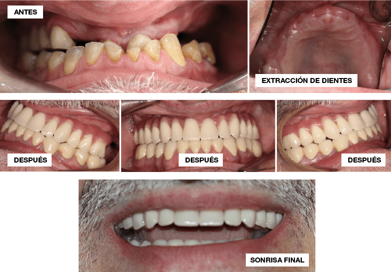 caso implantes dentales complejos