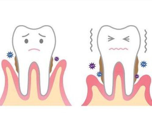 Raspado dental