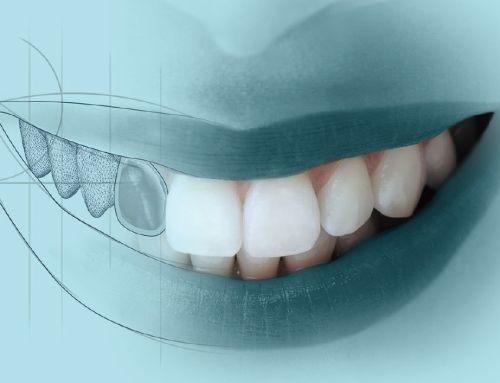 Tecnología CAD CAM en Clínica Dental Jose Luis Cano