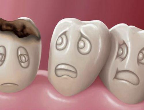 Enfermedades dentales más comunes