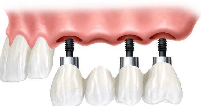 Cuanto dura un implante dental Murcia