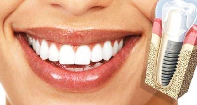 Implantes dentales sin dolor