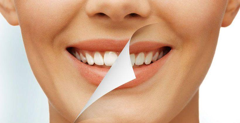 Tratamientos de estetica dental Murcia