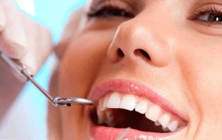 dientes sanos clinica dental murcia