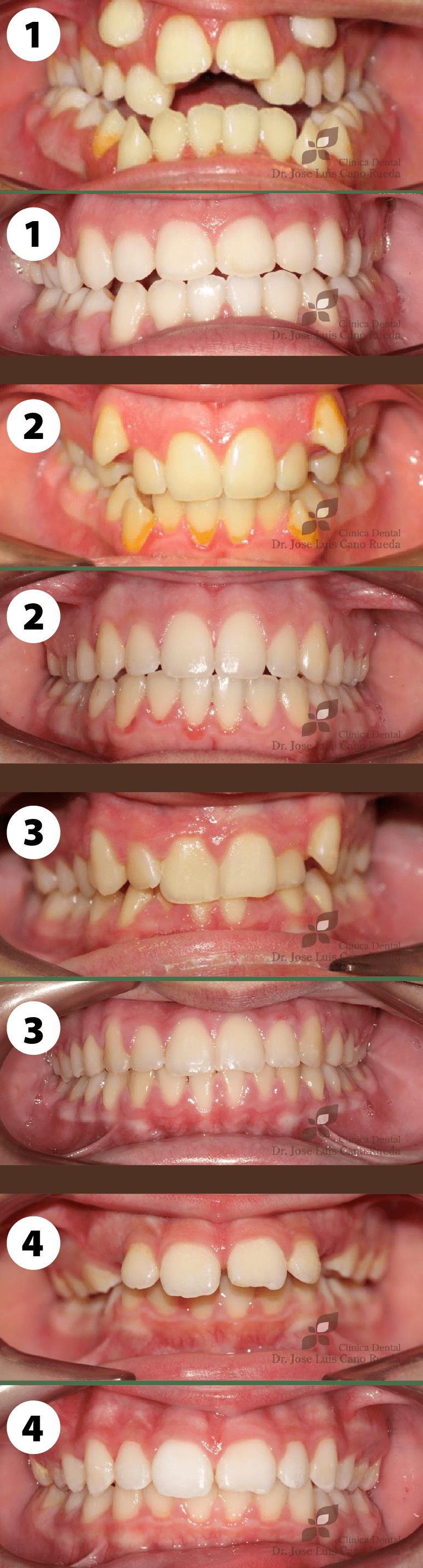 casos de ortodoncia en clinica dental murcia