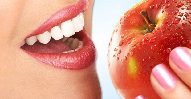Blaqueamiento dental Murcia duración