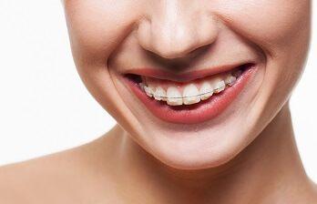 Ortodoncia cuidados