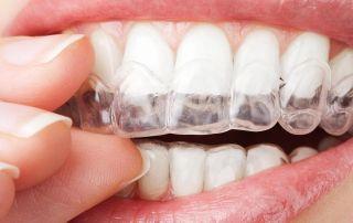 ortodoncia invisible murcia