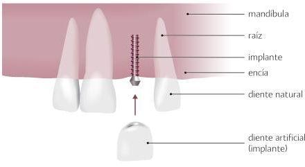 Mini implante dental ventajas