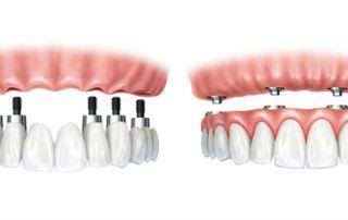 Mini implantología dental artículo
