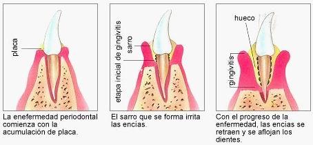En que consiste el curetaje o raspado dental