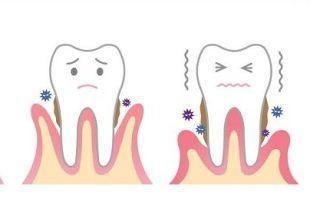 Tratamiento para curetaje o raspado dental