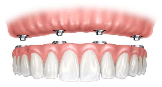 Dentadura postiza Prótesis Implantosoportadas