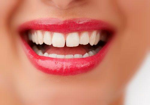 dientes separados implantes dentales