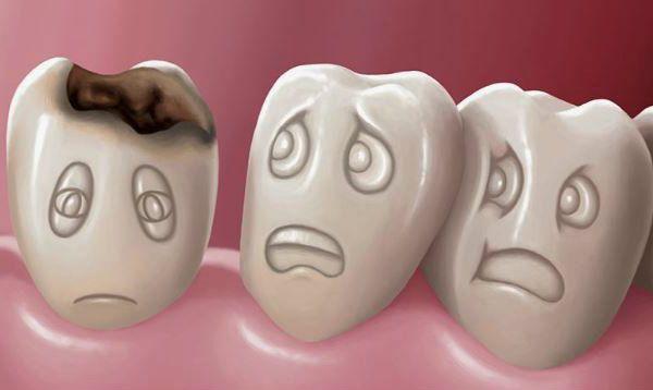 Enfermedades dentales comunes