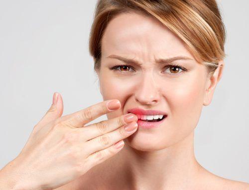 ¿Cómo actuar tras una fractura dental?