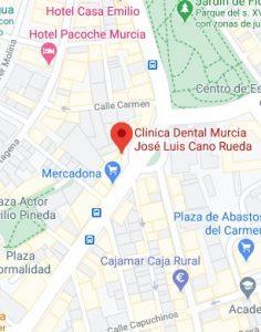Clínica dental jose luis cano plaza gonzalez conde 5 30002 murcia