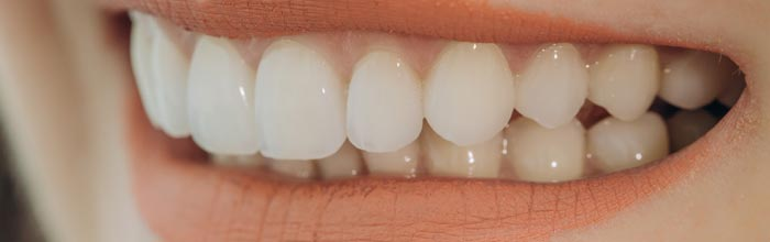 carillas dentales tratamiento