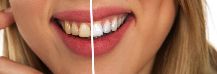 motivos para blanqueamiento dental