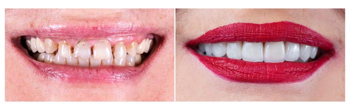 tratamiento rehabilitación oral