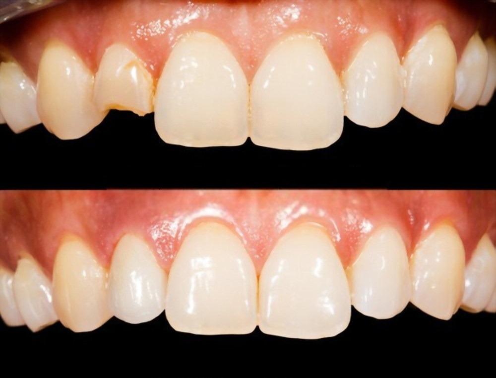 antes y después de rehabilitación oral