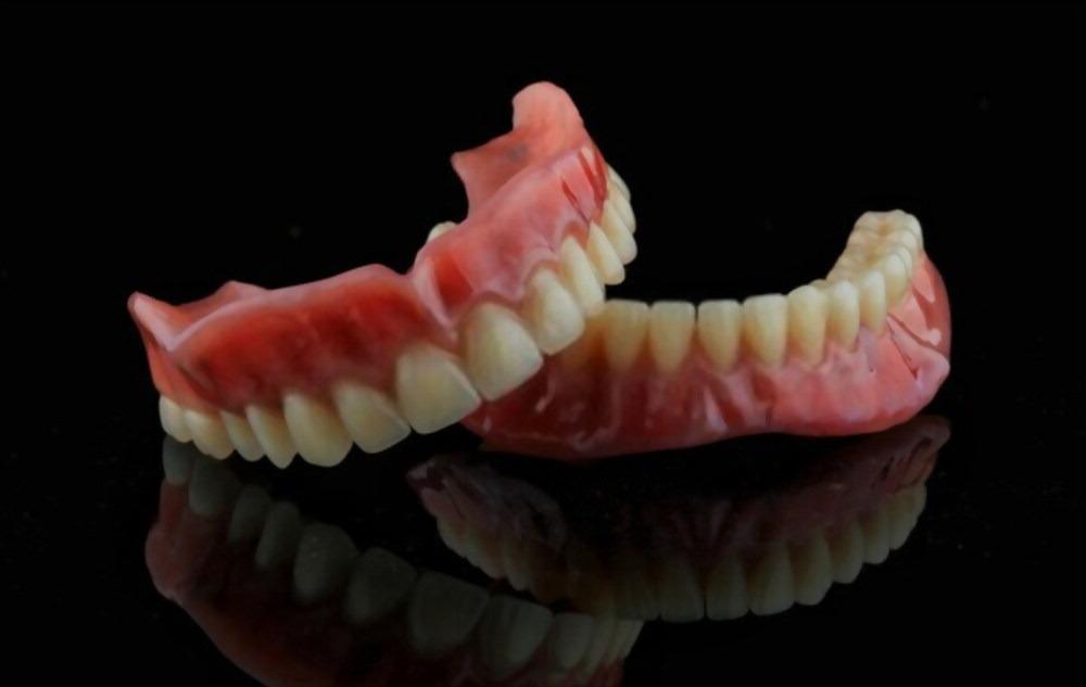 renderizado de una rehabilitación oral por ordenador