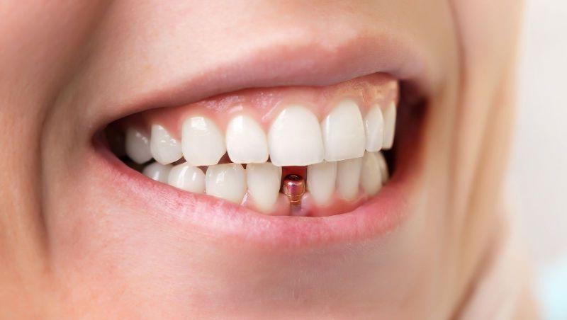 implentes-estética de un implante de carga inmediata