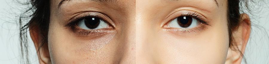 antes y despues mesoterapia