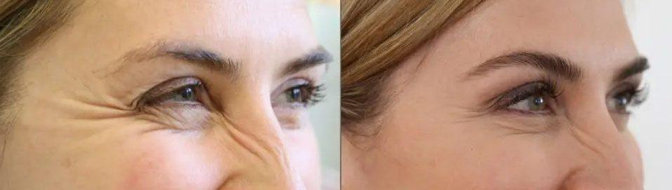 tratamiento-antiarrugas-faciales-con-acido-hialuronico-en-Murcia