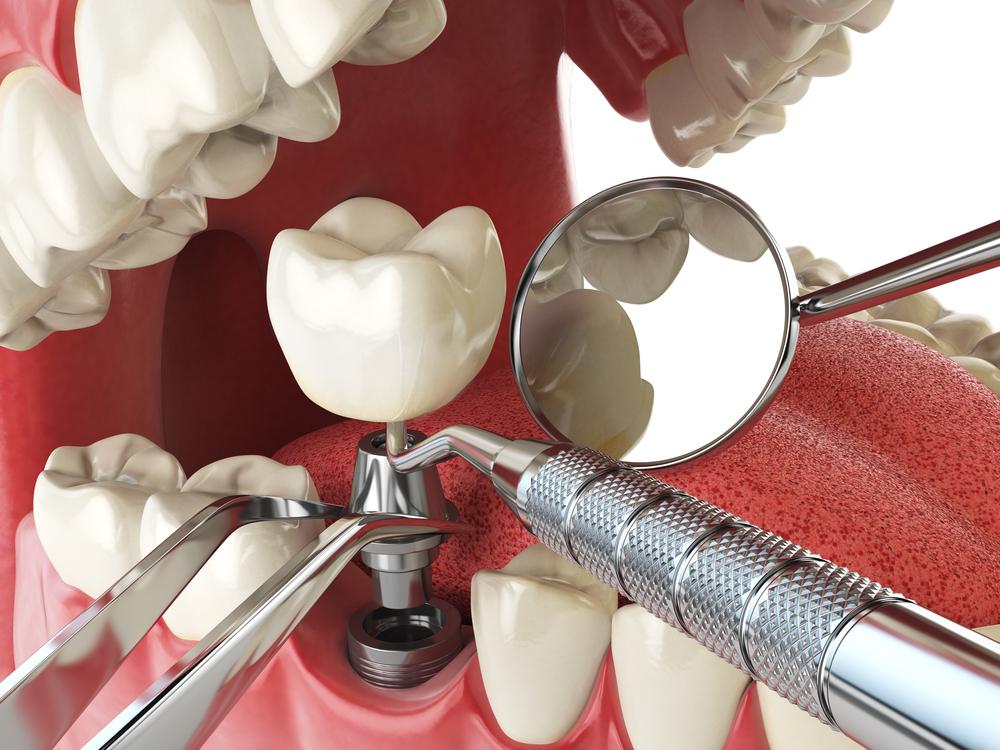 carga inmediata implantes