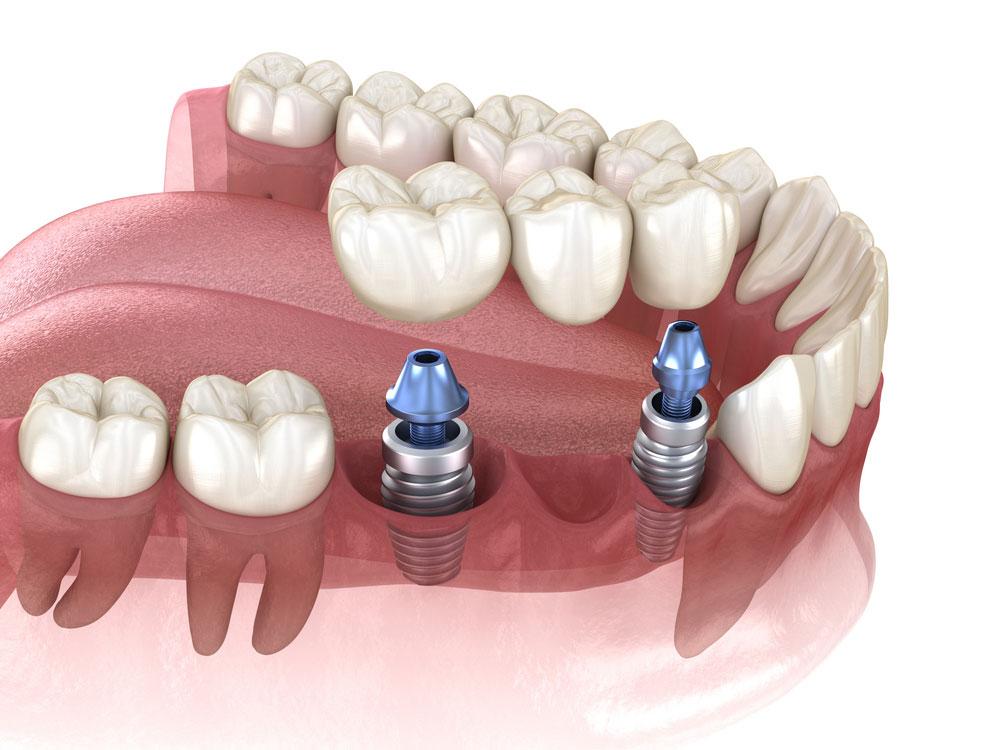 implantes-de-carga-inmediata