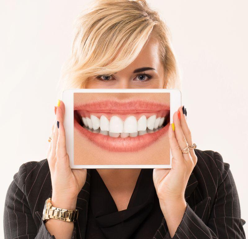 tratamiento carillas dentales